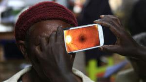 diagnosi occhi smartphone africa